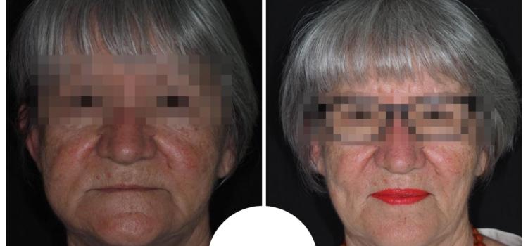 Due immagini a confronto della paziente: prima e dopo il percorso terapeutico